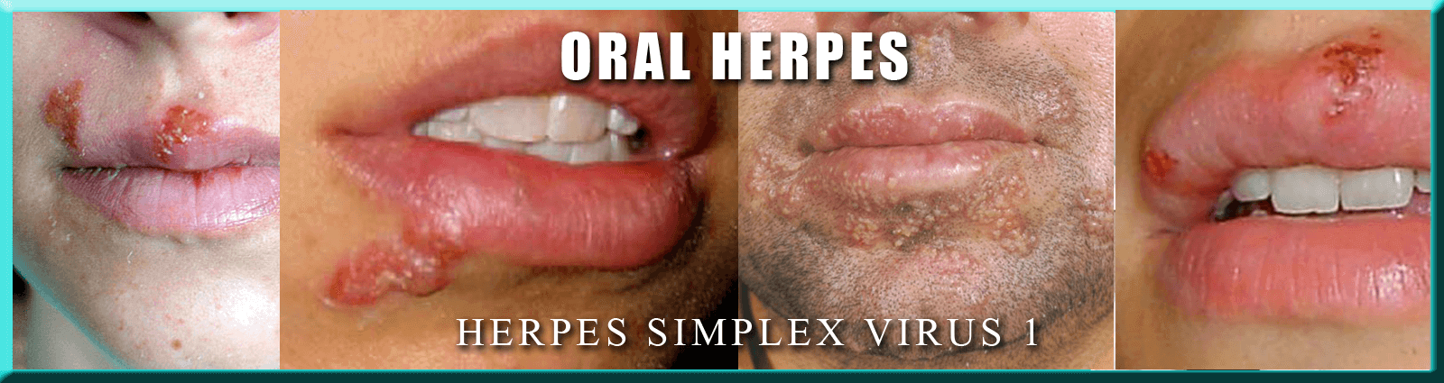 Hookup someone who has oral herpes